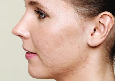 Skin Boosters - Before