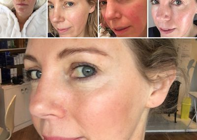 Clinic Trial of Retinol Peel
