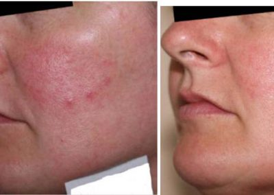 iS®  Clinical - before & after