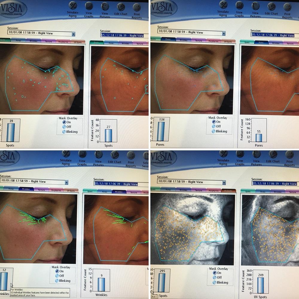 Ageing Skin Rejuvenation Essex Facial Aesthetics |Free Skin