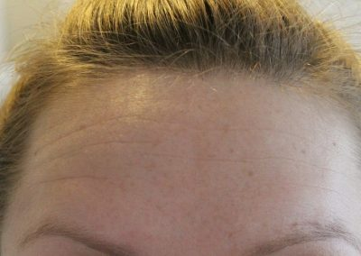 Muscle Relaxant - Post Toxin Forehead