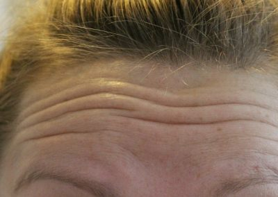 Muscle Relaxant - Pre Toxin Forehead