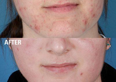 ZO SkinHealth Acne