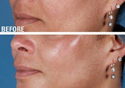 ZO SkinHealth Ageing