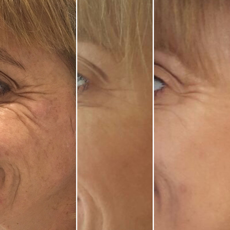 Skin Rejuvenation Essex, Profhilo, Naturally Stimulating