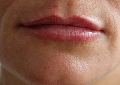 Lip fillers - post