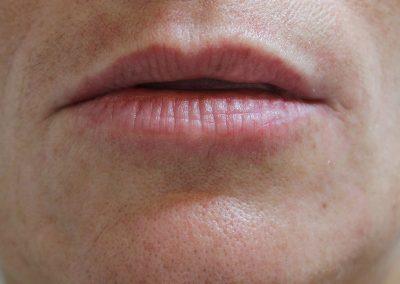 Lip fillers - pre