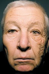 We all wear sunscreen whilst lying on the beach, but few of us use it as part of our daily skincare regime. The image above shows the striking image from the new England Journal of Medicine of a truck driver of 28 years, where the skin to the left has been protected through a lack of skin exposure, whilst the skin to the right has UV damage through the window. UVA rays are able to penetrate through clouds and glass and excessive exposure can cause the degradation of the skin fibres, causing lines and wrinkles. There are limited forms of protection for UV sun-damage, which is why wearing a high quality sunscreen is an absolute must.(Picture: New England Journal of Medicine)
