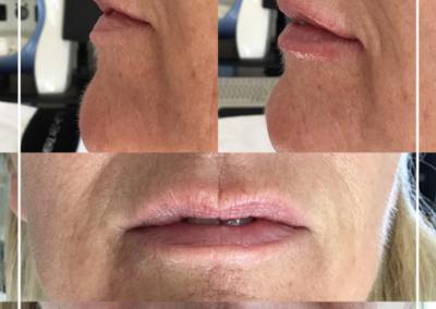 Belotero Lips 2