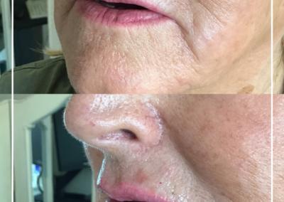 Belotero Lips 3