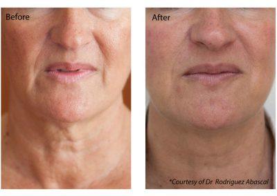Profhilo Essex | Facial Aesthetics by Julie Scott