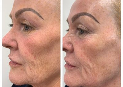 Wow Fusion | Facial Aesthetics | Specialist Skin Clinic Essex
