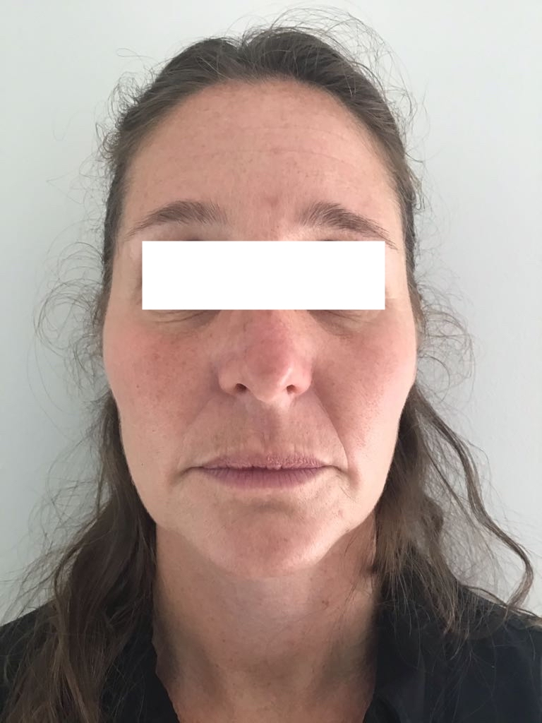 Botox Before & After   Facial Aesthetics Essex 