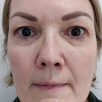 Tear Trough Correction   Dermal Fillers Essex   Facial Aesthetics by Julie Scott