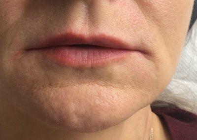 Lip Augmentation   Dermal Fillers Essex   Facial Aesthetics by Julie Scott