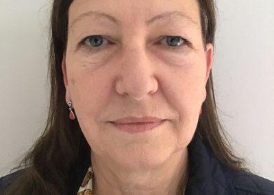Full Face Rejuvenation   Dermal Fillers Essex   Facial Aesthetics by Julie Scott